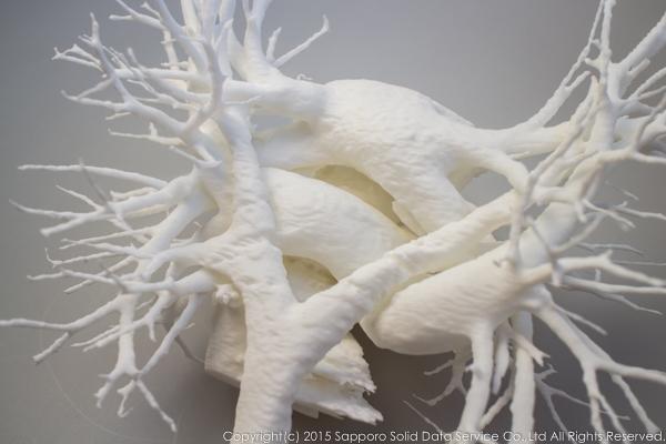 pulmonary_vascularity_bronchus_3dprint_model_03