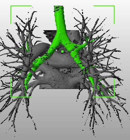 pulmonary_vascularity_bronchus_dicom_model_01.jpg