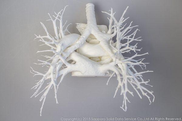 pulmonary_vascularity_bronchus_3dprint_model_01